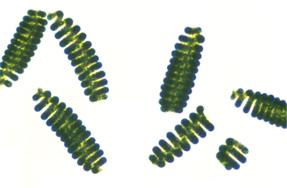 espirales - beneficios de la espirulina